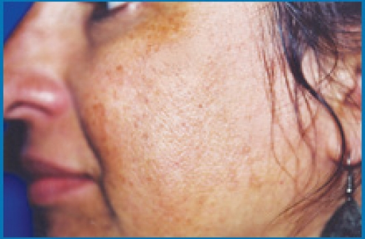 chemical peel for acne scars before