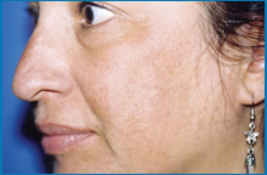 chemical peel after look at skin
