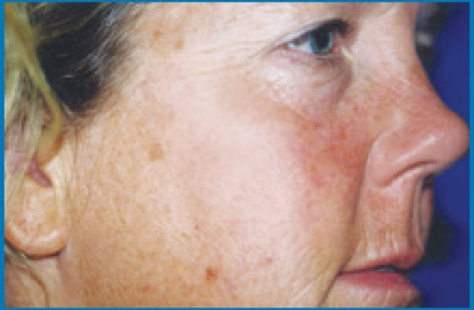 before Chemical Peel