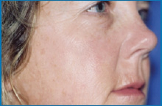 after Chemical Peel result