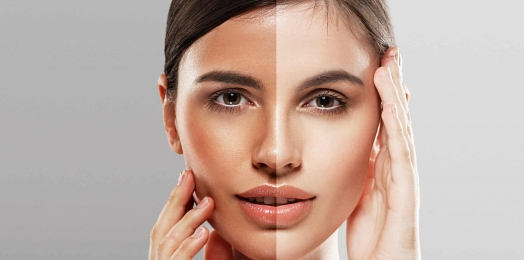 How IPL Photofacial Safely Treats Skin Problems?