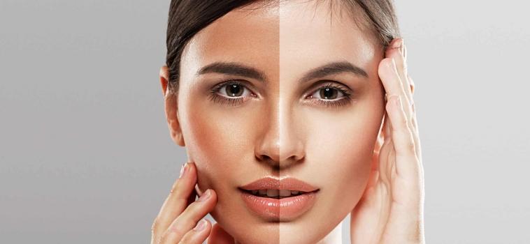 How IPL Photofacial Safely Treats Skin Problems?