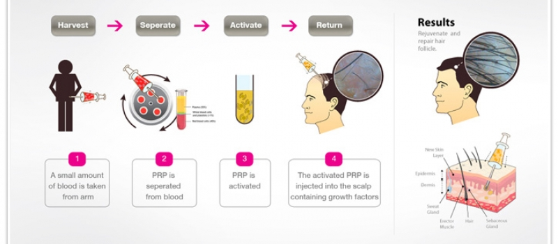 Platelet-Rich-Plasma-PRP-Therapy-for-Hair-Restoration