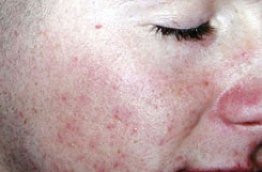 acne scar laser treatment cost