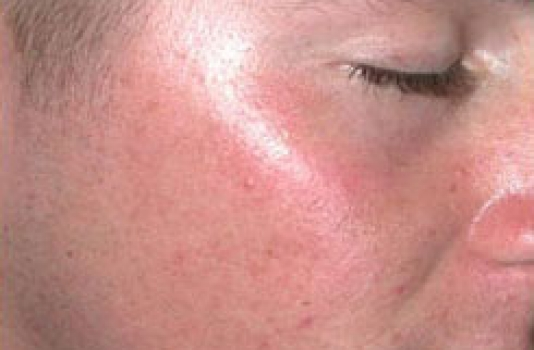 acne scars laser treatment after