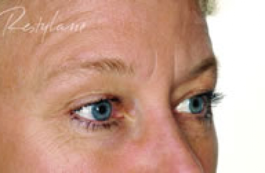 dermal fillers for under eyes