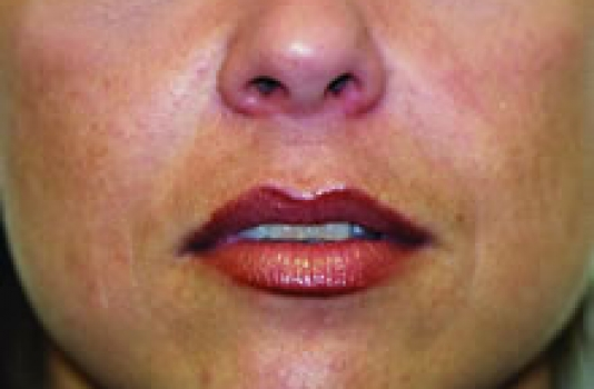 dermal fillers in lips after