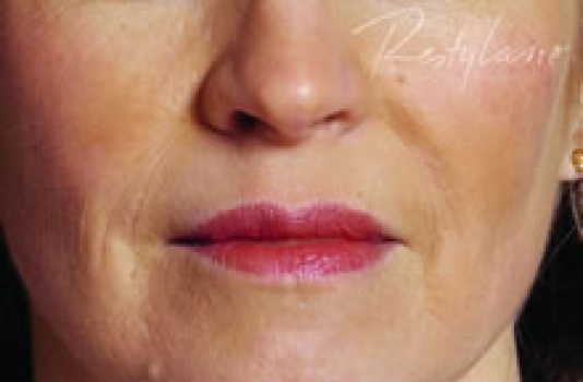 dermal lip fillers after