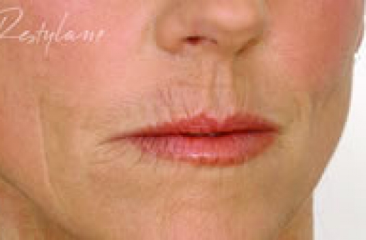 lip dermal fillers before