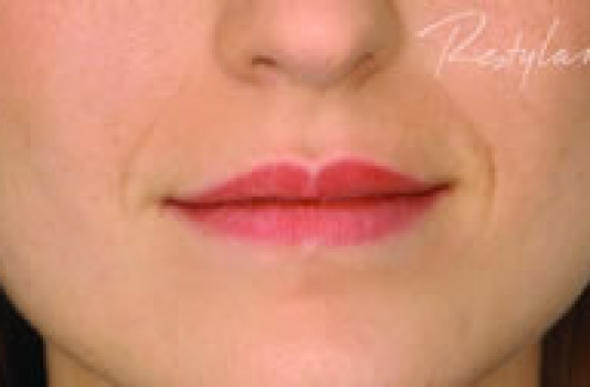 dermal filler lips before
