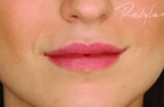 dermal filler lips after