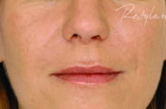 dermal filler nose after