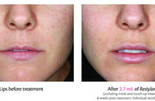 dermal fillers for lips before