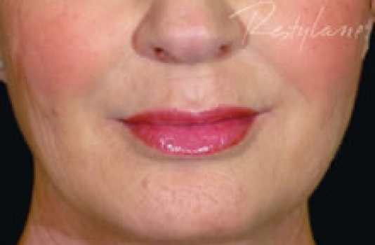 dermal fillers nose after