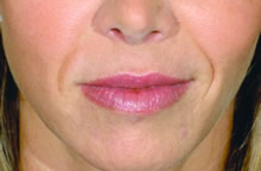 nose dermal filler