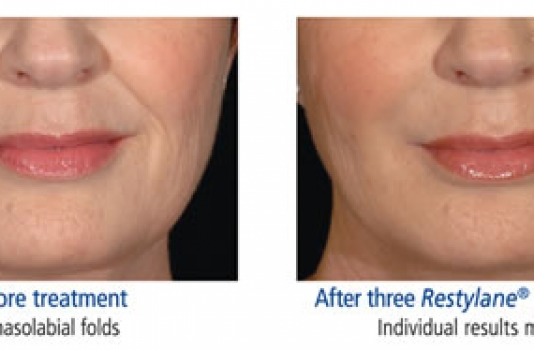 dermal fillers lips before and after