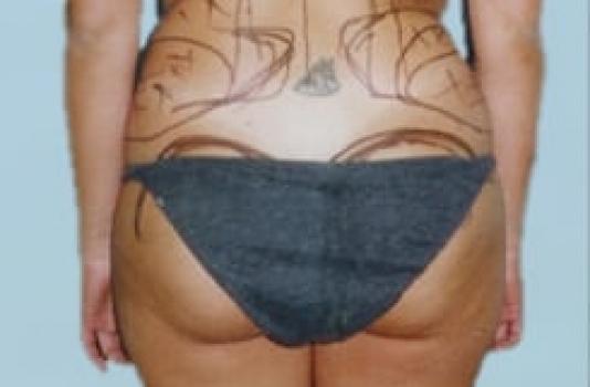 before brazilian butt lift