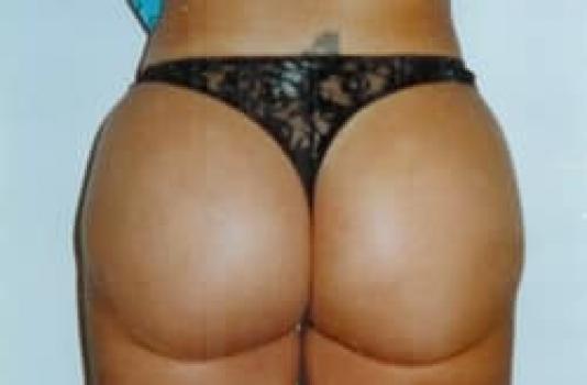 after brazilian butt lift
