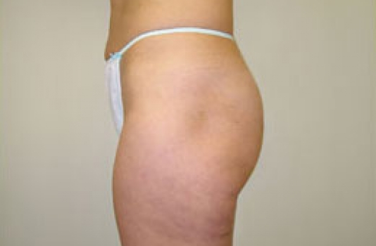 cellulite reduction after