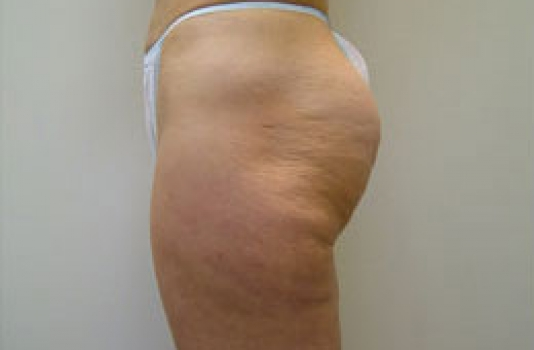 cellulite treatment laser in NY