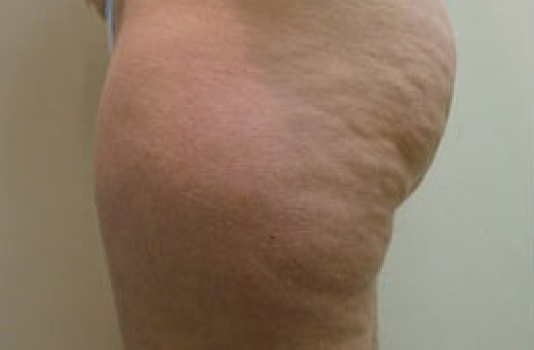 cellulite treatment laser