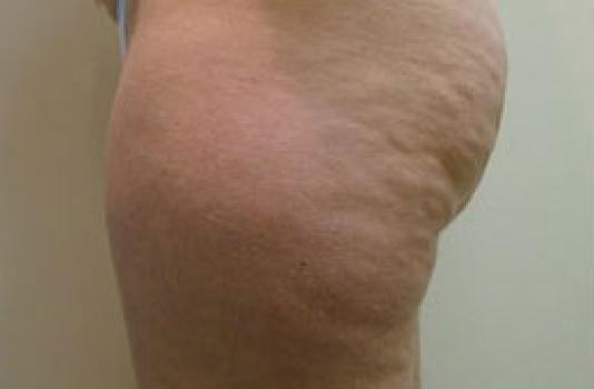cellulite treatment laser