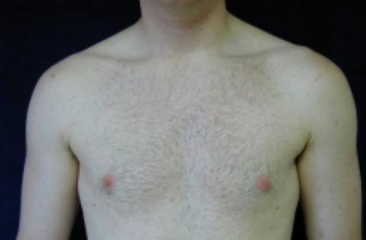 Glynecomastia surgery