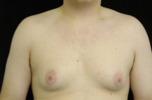 gynecomastia before