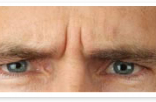 eyebrow lift botox before