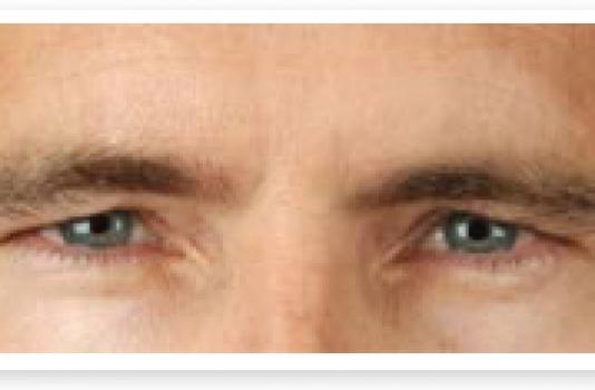 eyebrow lift botox after