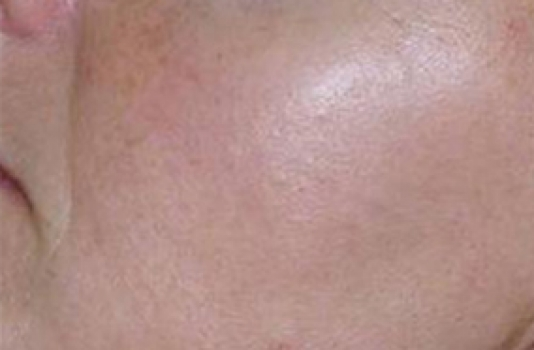 photofacial treatment before