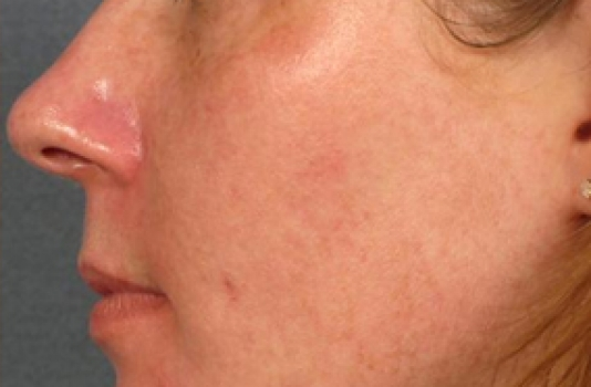 photofacial treatment after