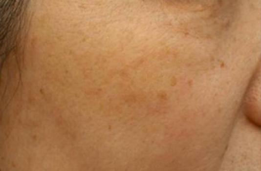 photofacial skin treatment
