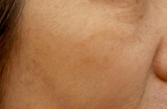 photofacial results after one treatment