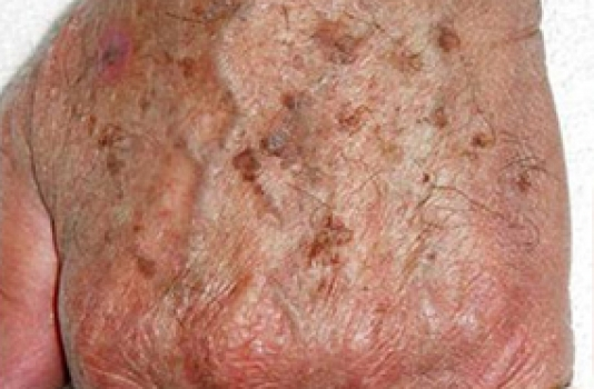 ipl photofacial before hand pictures