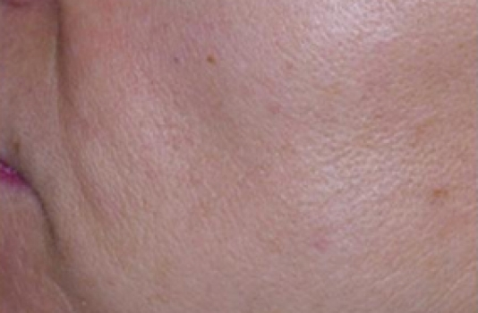 photofacial clear result