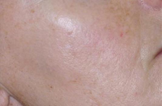 ipl photofacial treatment after result