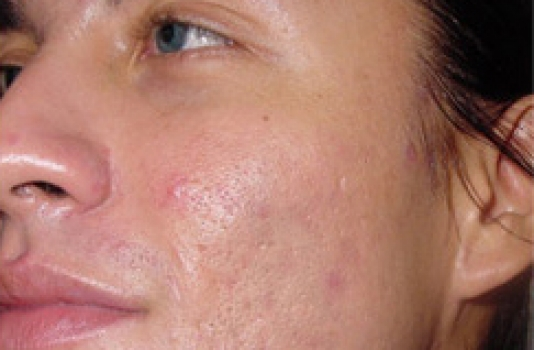 microdermabrasion after for acne