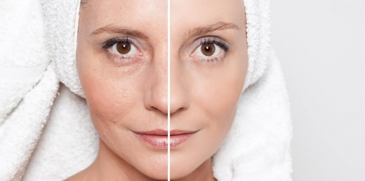 Surgical Vs Non-Surgical Skin Tightening Procedures