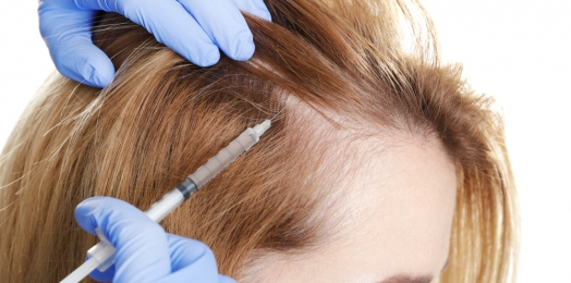 How PRP Hair Restoration Treatment Helps You To Regain Your Loss Hair?