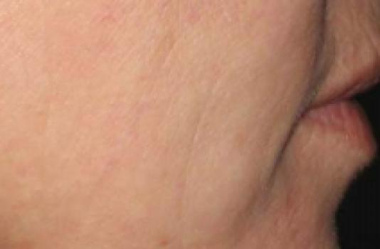 titan skin tightening before