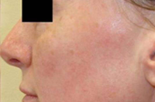 titan skin tightening after image