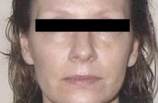 Titan Laser after face and neck