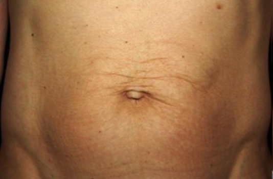 titan skin tightening treatment