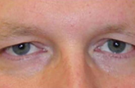 titan skin tightening eye before
