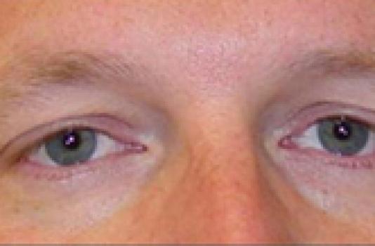 titan skin tightening after eye treatment