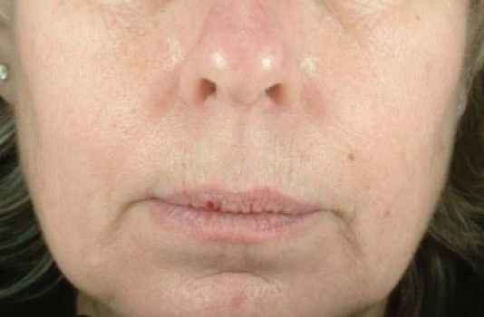 titan for skin tightening before