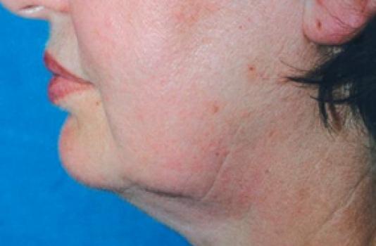 titan skin tightening after photos