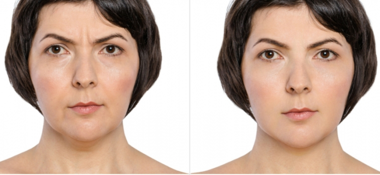 How to Reduce Double Chin with Best Kybella Treatment?